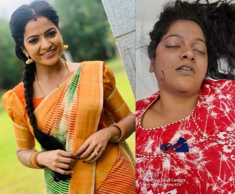 பிரபல சின்னத்திரை நடிகை சித்ரா திடீர் தற்கொலை-காரணம் என்ன..?